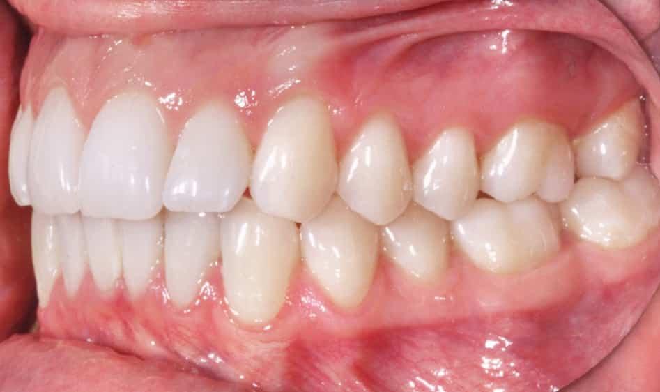 buena mordida en ortodoncia