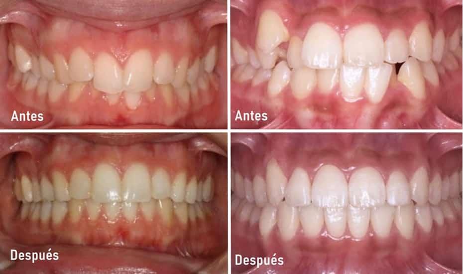 casos antes despues terminados ortodoncia