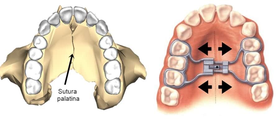 ejemplo de disyunción maxilar