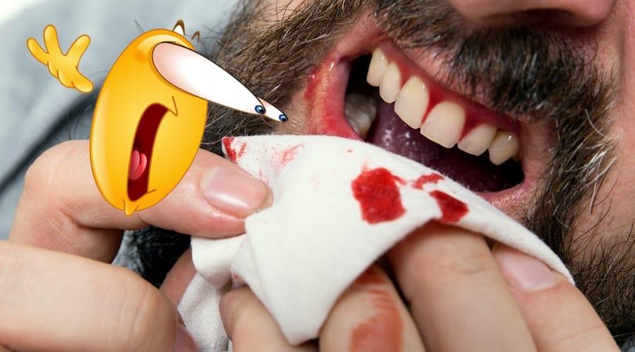 encias sangrantes me sangran las encias