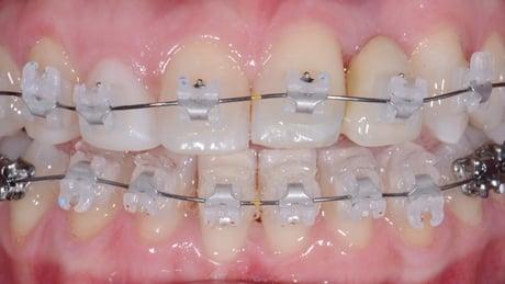fase alineación y nivelación ortodoncia