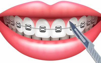 fibrotomia supracrestal ortodoncia