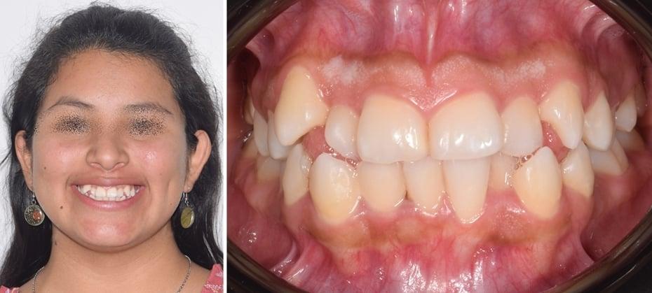 indicaciones de la ortodoncia