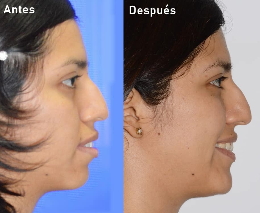 objetivos estéticos cumplidos en ortodoncia