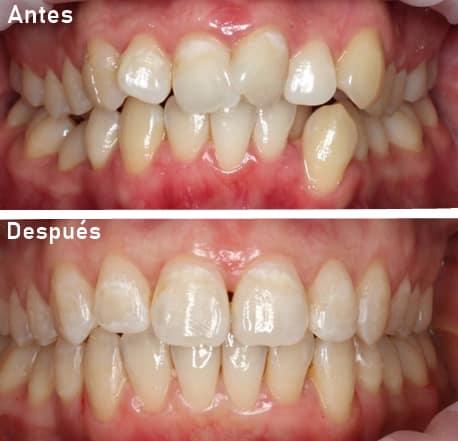 por que es importante la ortodoncia
