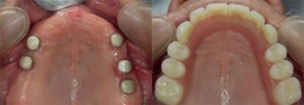 sobre dentadura sobre dientes naturales