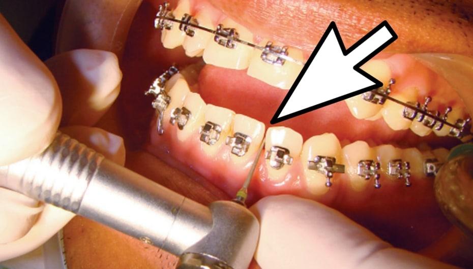 Desgaste dental en ortodoncia indicaciones