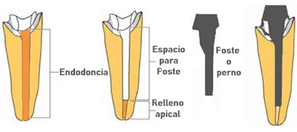 Endodoncia y Perno secuencia