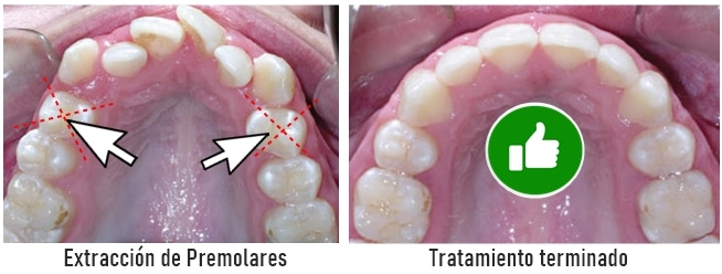 Extraccion-de-premolares-para-ortodoncia