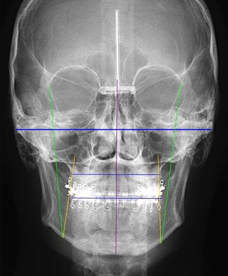 Radiografía cefalométrica frontal