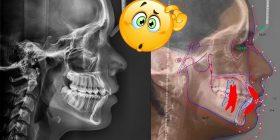Radiografía cefalométrica o lateral estricta en ortodoncia