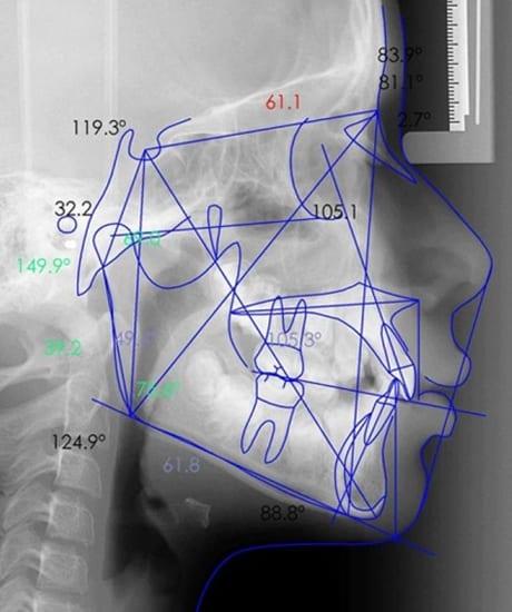 Análisis cefalométrico