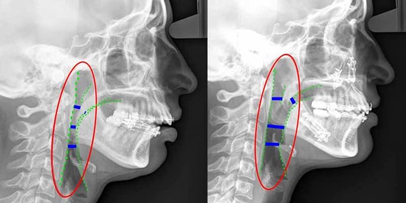 Tratamiento ortodoncia cirugía de la apnea