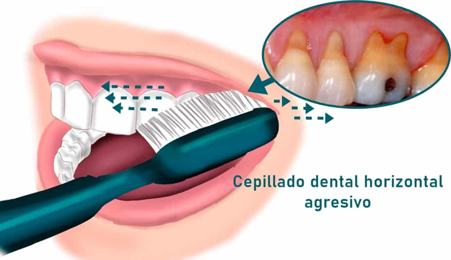 cepillado dental agresivo y encía retraída