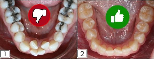 indicaciones del desgaste dental en ortodoncia STRIPPING