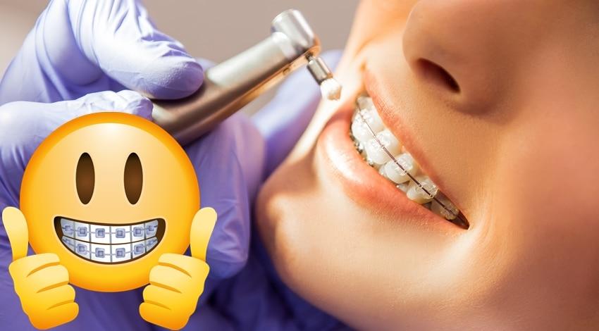 limpieza dental con brackets estéticos