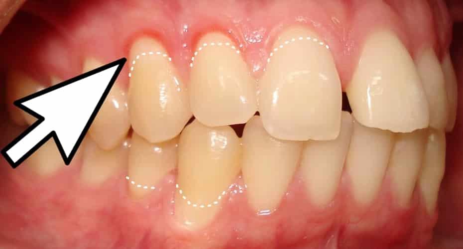 Encías Retraídas Causas Y Tratamiento Especializado Solución Dental