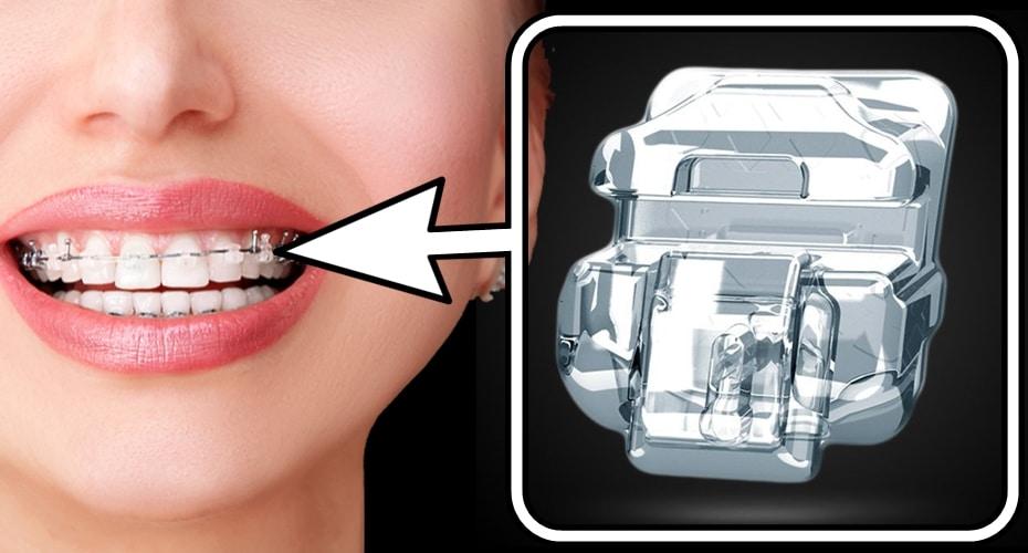 BRACKETS DAMON los mejores en ortodoncia