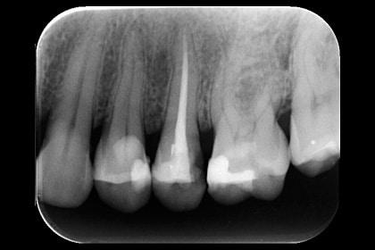 Premolares con endodoncia, evalución con radiografía periapical.