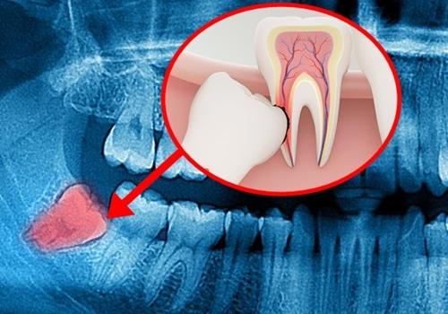 extracción de las muelas del juicio en ortodoncia