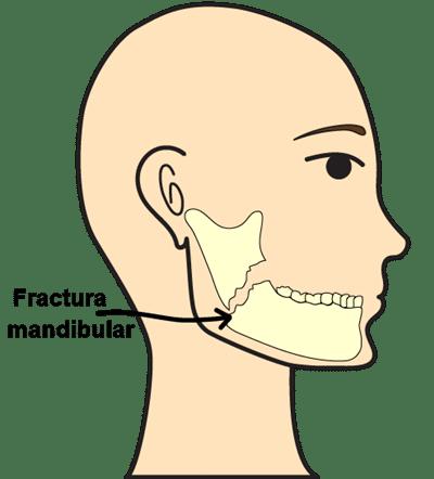 fractura mandibular emergencia dental