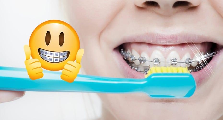 higiene dental con brackets limpios