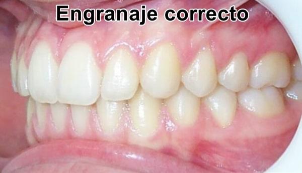 engranaje correcto de ortodoncia