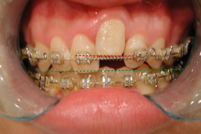 anquilosis dental con brackets