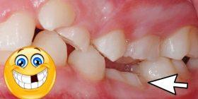 anquilosis dental tratamiento