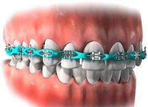 cadenetas de ortodoncia