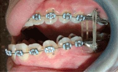 solución a la anquilosis con ortodoncia