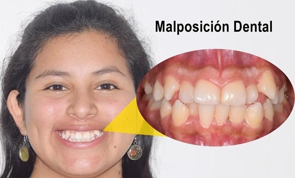 mal posición dental Perú
