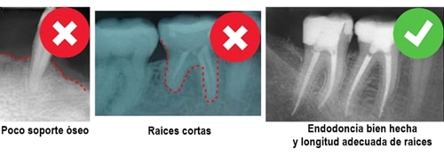Requisitos para un perno endodoncia y corona en una molar