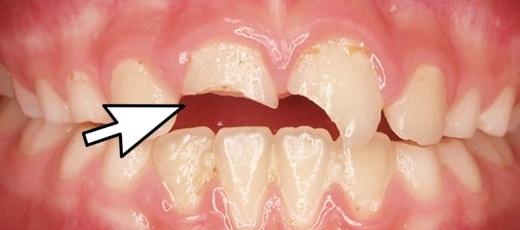 traumas dentales o dientes quebrados