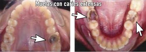 Extracción de molares en ortodoncia