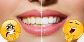 dientes amarillos soluciones