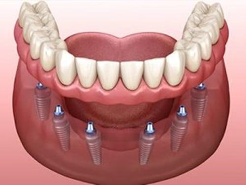 all-on-6-dental-protesis sobre implantes