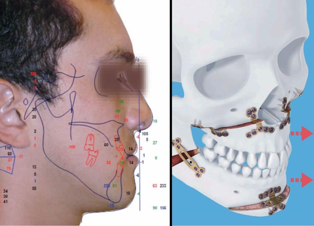 cirugía de avance maxilar en colpaso de perfil en una mala ortodoncia