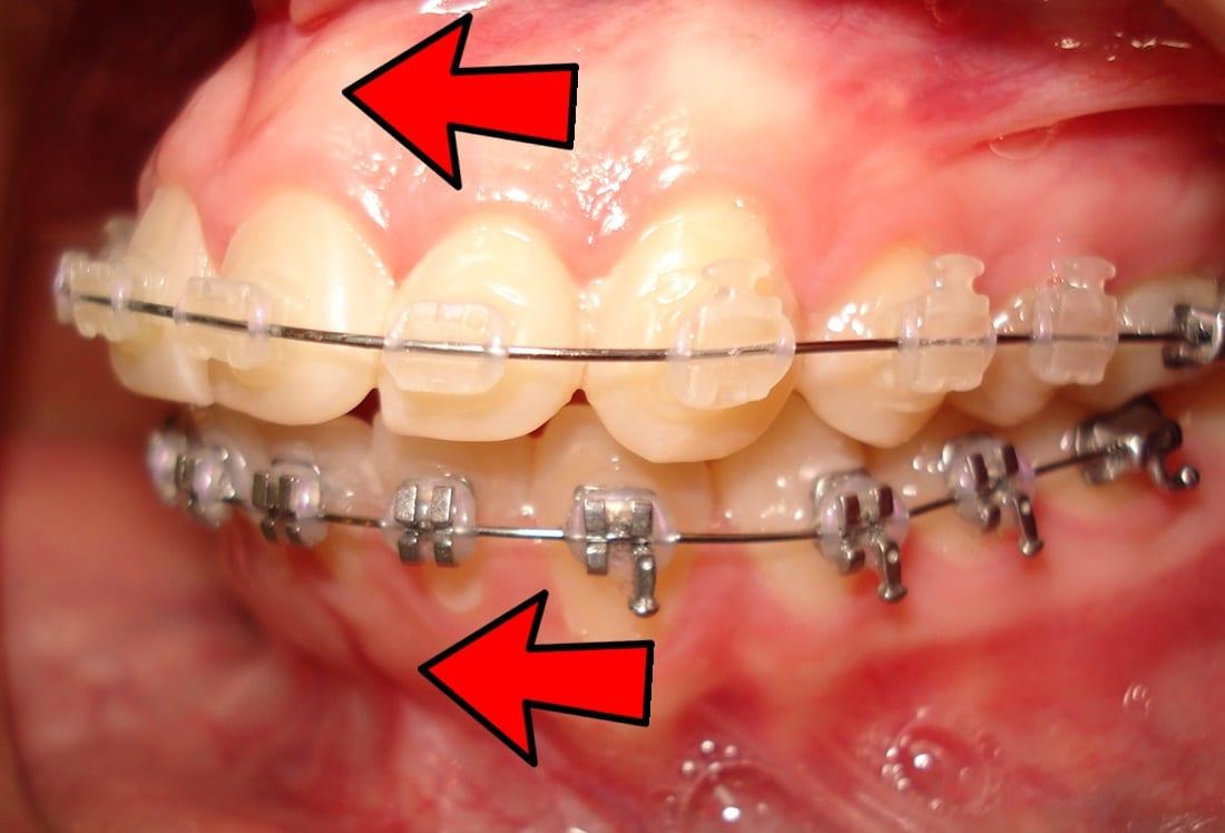 dientes hacia afuera con brackets