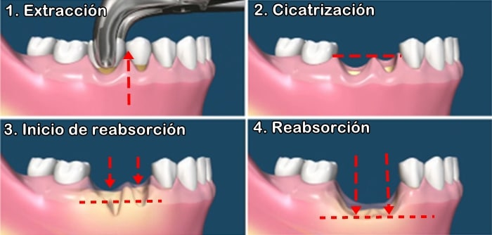 proceso de reabsorción dental