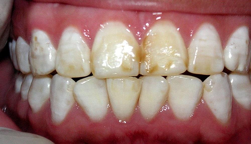 fluorosis-dental-grave