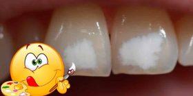 manchas blancas en dientes fluorosis