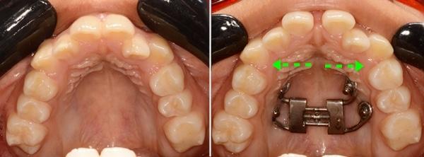 Ampliación de maxilar con disyuntor