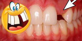 agenesia dental y soluciones