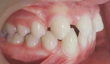 agenesia dental sin implante