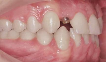 agenesia dental con implante 2