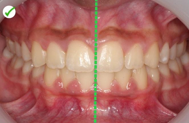 despues de ortodoncia