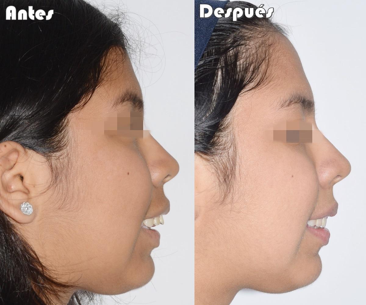 Tratamiento ortopédico maxilar ortodoncia