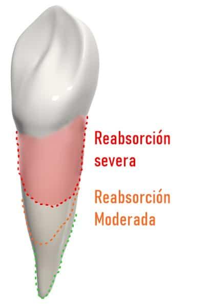 reabsorción grave en ortodoncia