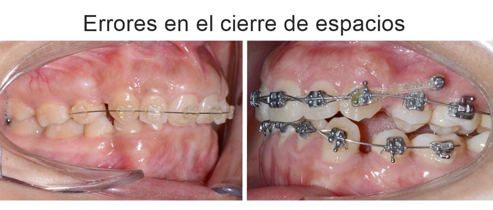 errores en el cierre de espacios de ortodoncia